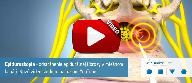 epiduroskopie-video-sk-web