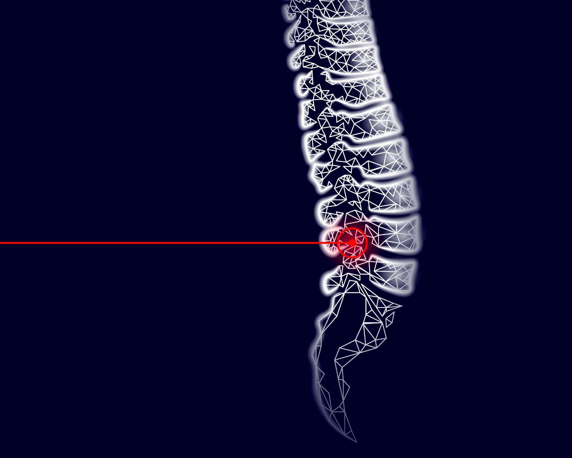 Perkutánne endoskopické techniky na www.zdravie.sk
